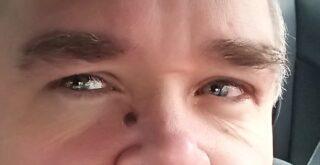 Banner Augen